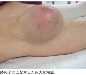 出典:http://gooday.nikkei.co.jp/atcl/disease/090842000/